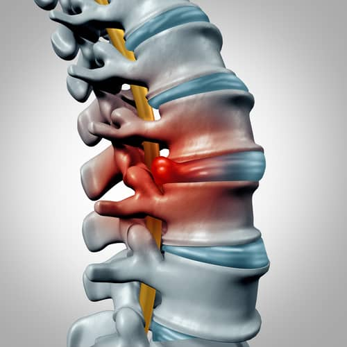 Herniated Disc from a Car Accident