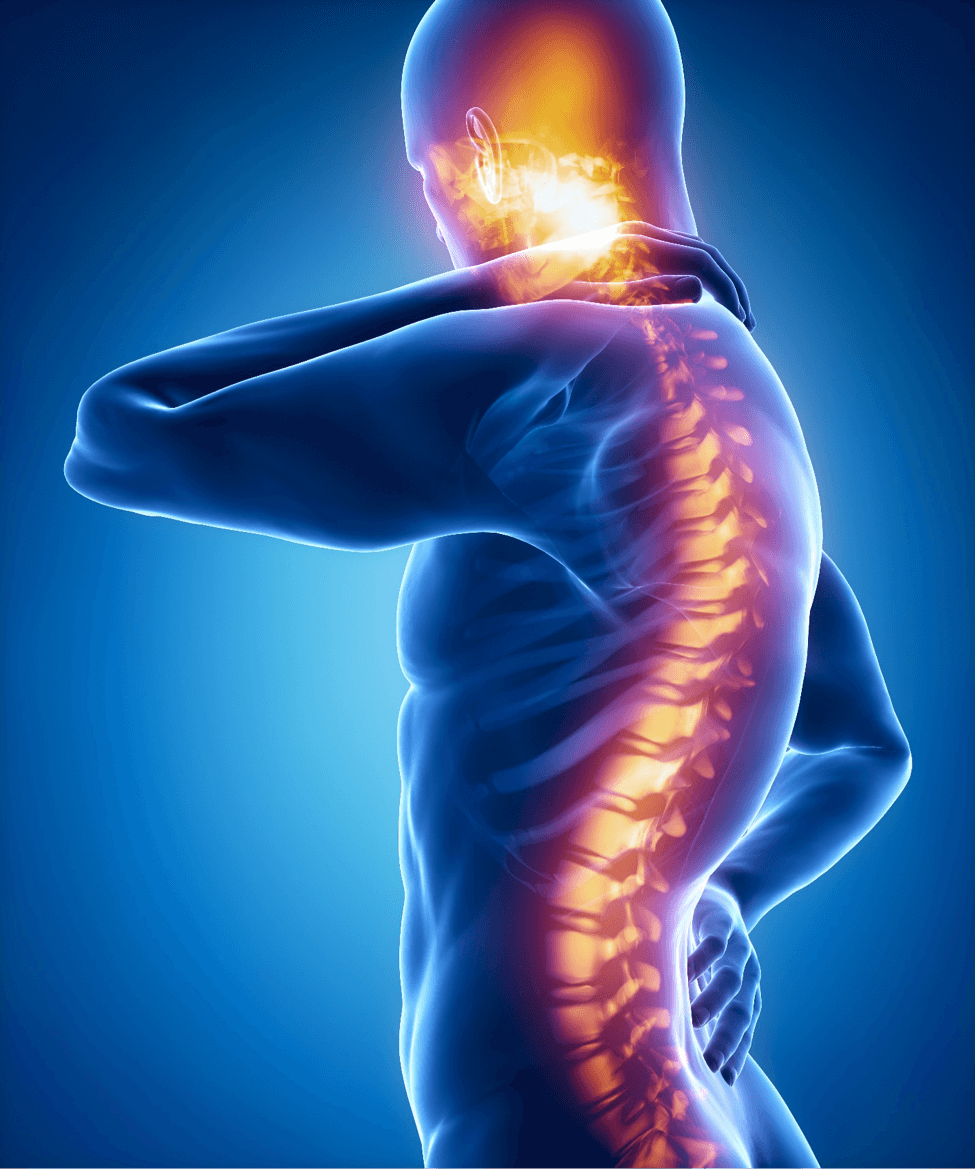 Paralysis Caused by a Colorado Springs Auto Accident