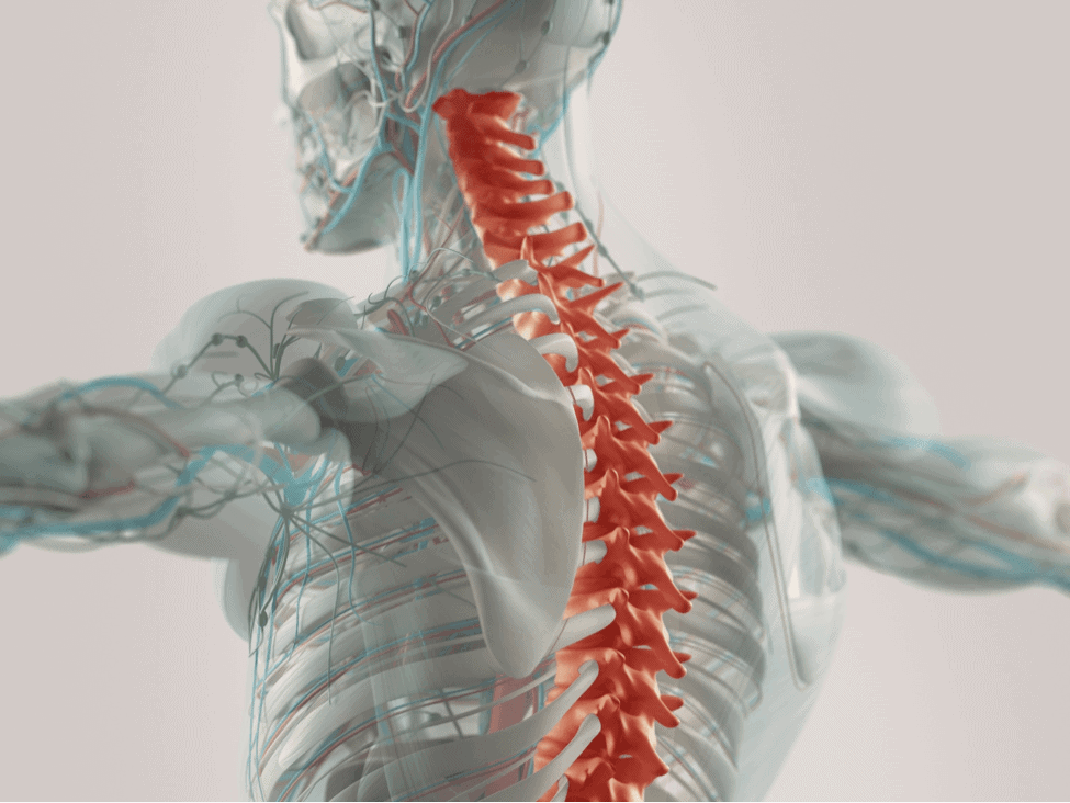 Spinal Cord Injuries from Car Crash: Colorado Springs Auto Accident Lawyer
